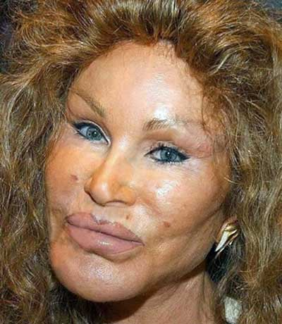 Jocelyn_Wildenstein.jpg