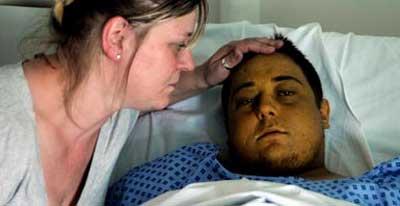 british_liver_patient.jpg