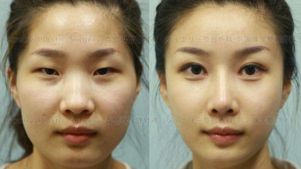 20140421-korea-plastic.jpg